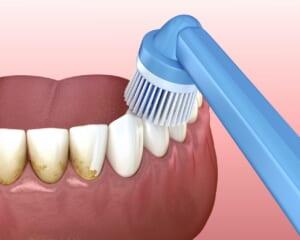 モニター PMTC(歯のクリーニング)