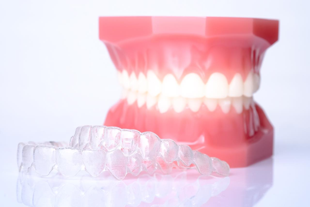 インビザラインで抜歯は必要?適応症例とタイミングについても解説