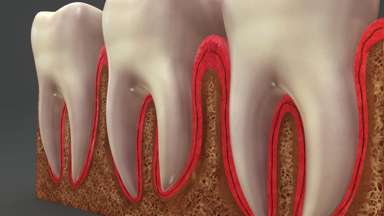 歯列矯正すると歯の根が溶ける?歯根吸収のリスク・症状・治療法
