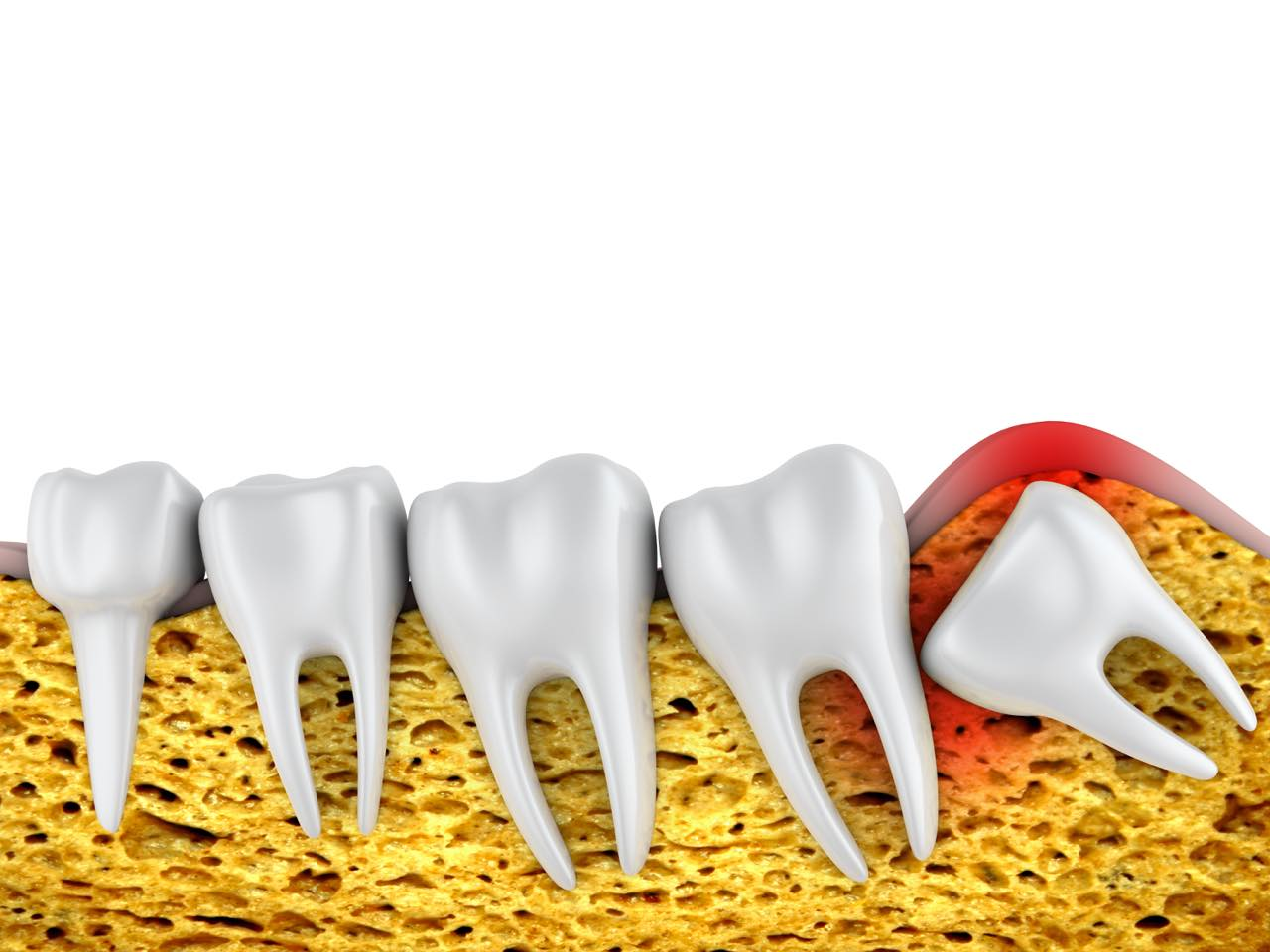 埋伏歯とは?歯が生えてこない原因・症状とその治療法も解説