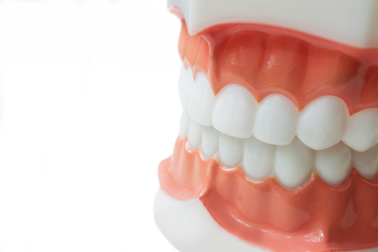 不正咬合の原因と症状とは?正しい噛み合わせにするための矯正治療も解説
