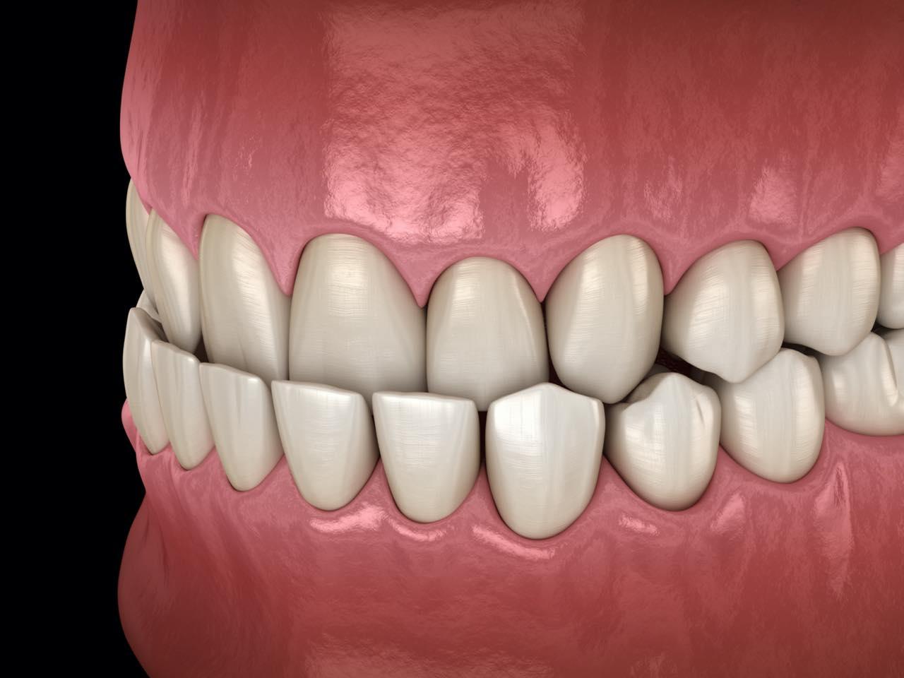 歯列がクロスする交叉咬合(クロスバイト)とは?その原因・症状・矯正治療